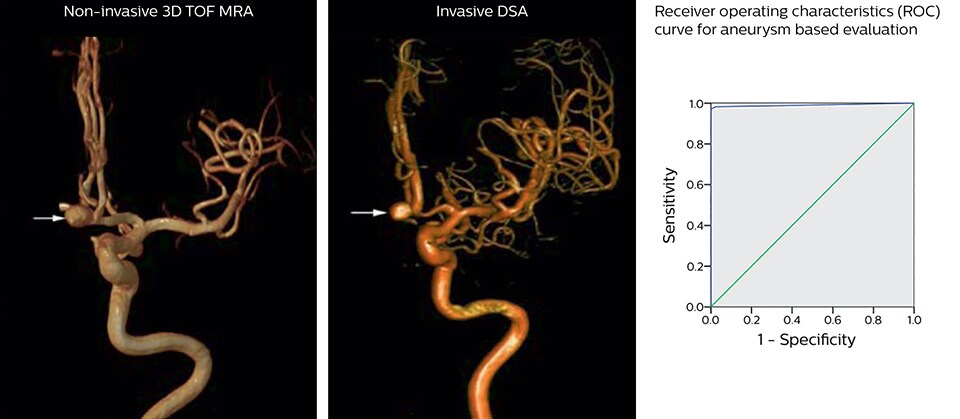 small aneurysm 3d tof mra and dsa